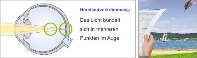 Hornhautverkrümmung (Astigmatismus)
